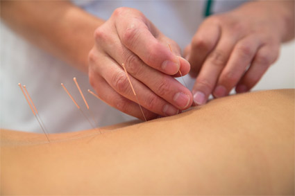 Acupuncture in Lakewood, CO